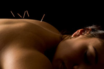 Manchester Acupuncture
